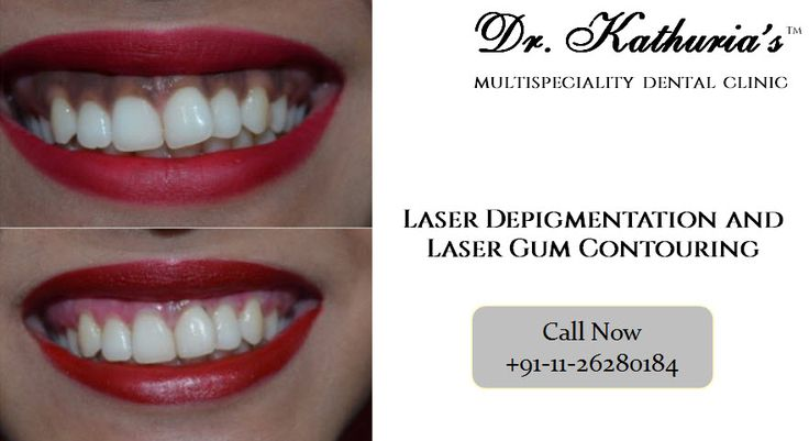 Laser Depigmentation and Laser Gum Contouring done by Dr. Sween Kathuria at Dr. Kathuria's Multispeciality Dental Clinic #LaserDepigmentation #GumContouring
