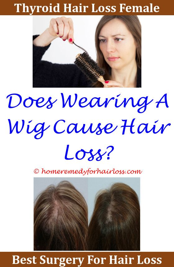 Hair Loss Shampoo For Women Hair Loss Hair Loss Treatment And