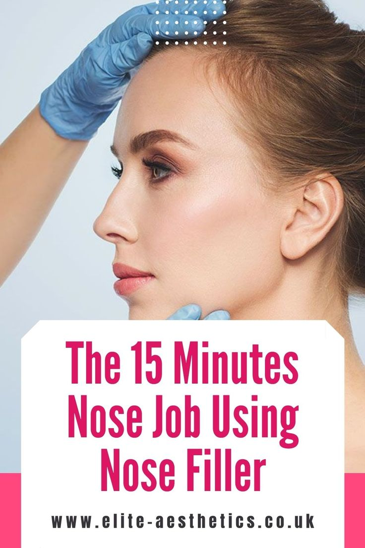 Non surgical nose job before and after in 2020 Nose job