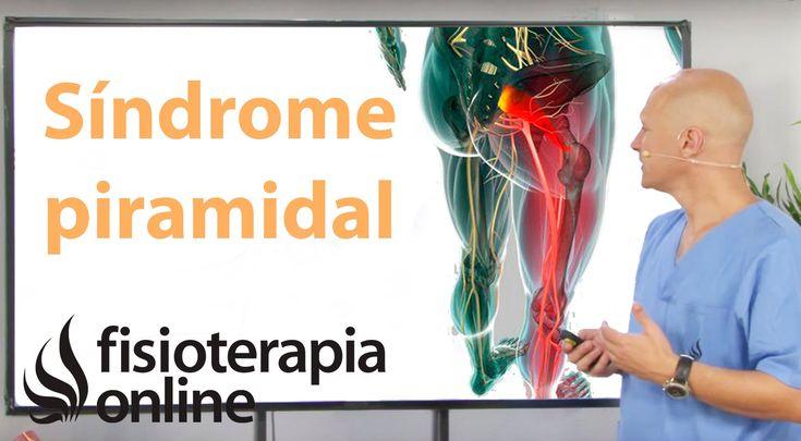 Cómo saber si tienes síndrome del músculo piramidal. - YouTube