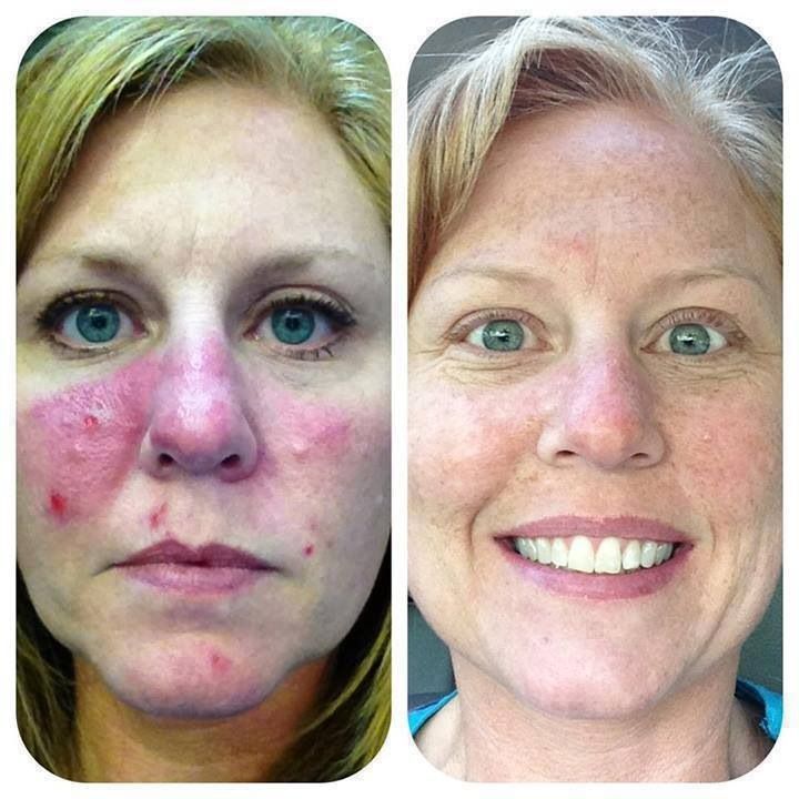 Unbelievable Results On Rosacea With Rodan And Fields
