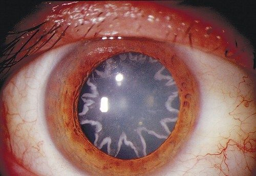 This incredible photograph shows a man who was left with stars in his eyes after suffering from a 14,000-volt shock. The 42-year-old electrician from California, United States, experienced the shock after his left shoulder came into contact with the current. Four weeks later, suffering from reduced vision, he went to his doctor who found he had developed star-shaped cataracts. The shock caused an electric current to pass through his whole body, including the optic nerve, which...
