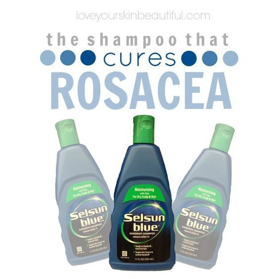 Selsun Blue Shampoo: The Best Rosacea Treatment Rosacea is one of those skin conditions that is both a blessing and a curse. It tends to manifest itself as a chronic skin flare, yet when at bay gives a rosy, natural blush. From a family with rosacea, my beautiful grandmother has been th