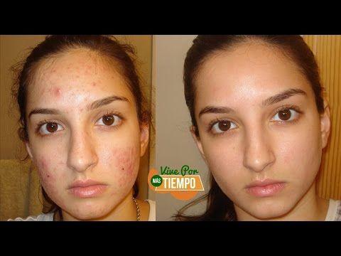 Esta mujer lavo su cara con esto por 3 días y elimino de su rostro las manchas, pecas e incluso arru - YouTube