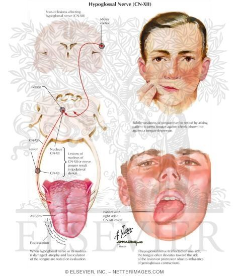 Glossopharyngeal Neuralgia - http://www.lookfordiagnosis.com/mesh_info.php?term=Glossopharyngeal+Nerve+Diseases=1
