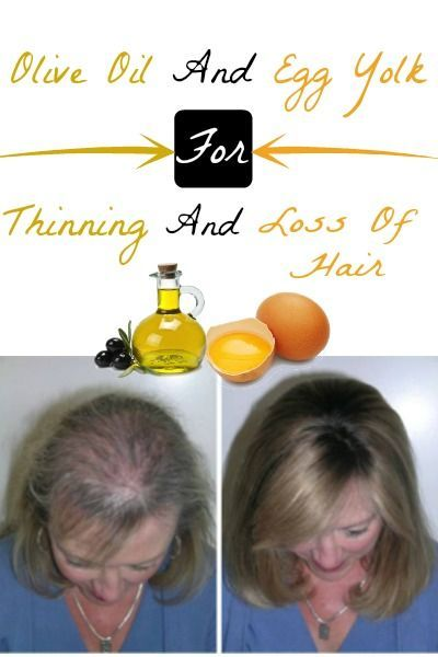 Olive Oil and Egg Yolk For Thinning and Loss Of Hair | Home Remedies And Skin…