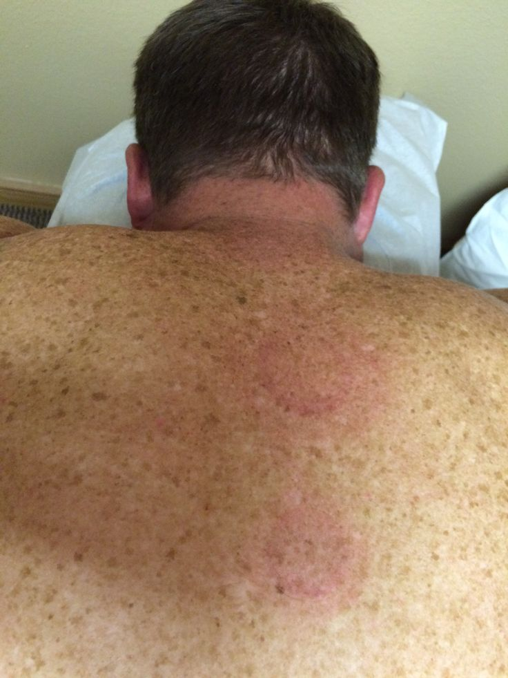 Acupuncture combining Chinese herbs can help patient with severe pain - http://dryangorlandoacupuncture.com/acupuncture-combining-chinese-herbs-can-help-patient-severe-pain/