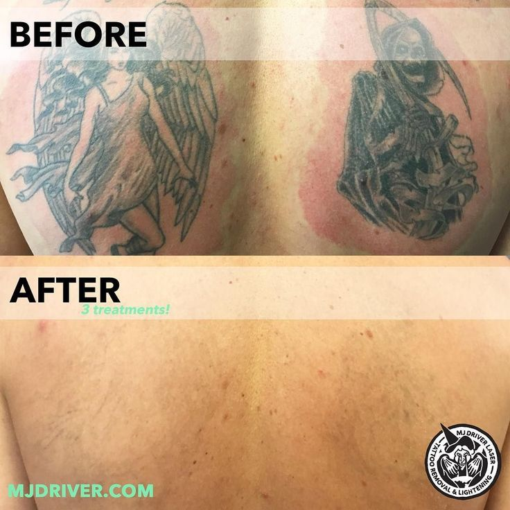 Laser Tattoo Removal At Wa Ink By Mjdriverlasertattooremoval And Swlaser_tattooremoval  Treatments Total