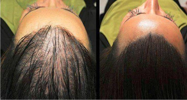 Najúčinnejší recept proti vypadávaniu vlasov a na rýchly rast.  Výsledky už po 1. týždni používania  Zloženie:  ricínový olej (2 polievkové lyžice) vaječný žĺtok (1 vajce) med (1 polievková lyžica)