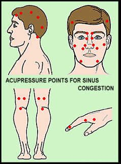 Acupressure points, natural anti-inflammatory especially and palliative care for sinus congestion
