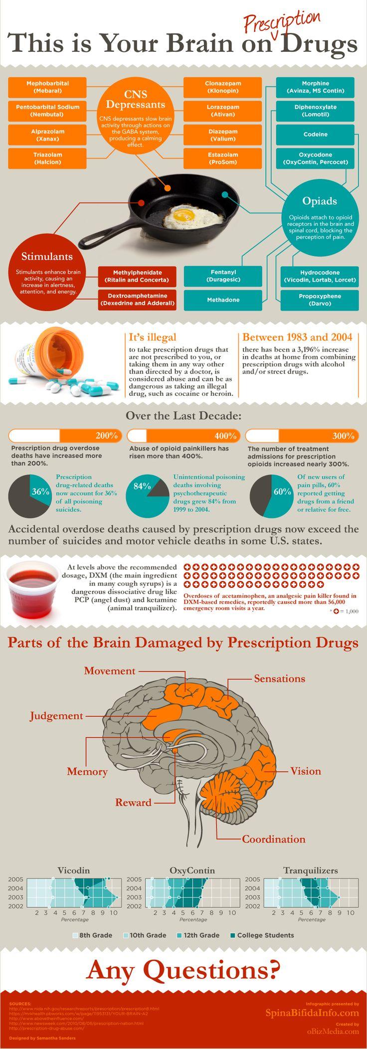 This is your brain on prescription drugs.   #addiction #prescriptiondrugs #infographic www.NewBeginningsDetox.com
