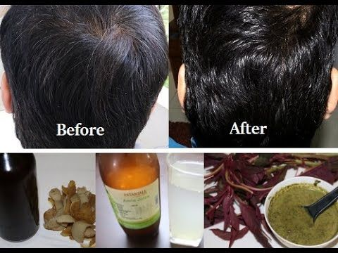 Magical Remedies to Change White Hair to Black Permanently in 30 Days Naturally - YouTube