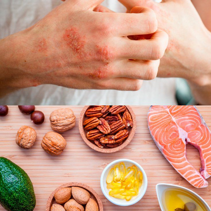 Natural Eczema Treatment: 13 Home Remedies for Eczema