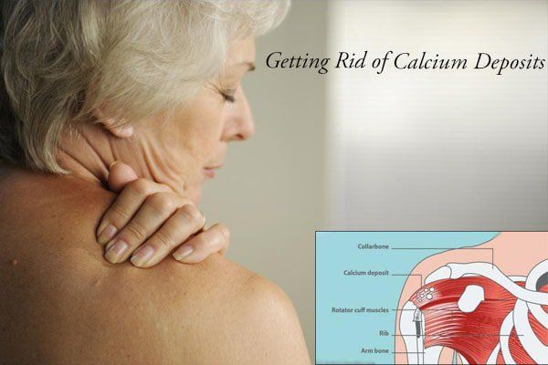 8a2bc2795a94a9e4b13cf47f8b9851f2 - How To Get Rid Of Excess Calcium In The Body