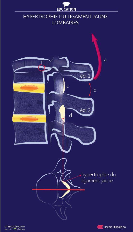Comment soigner la sténose spinale cause hypertrophie ligament jaune. Le méchanisme d'action du traitement Cox®.