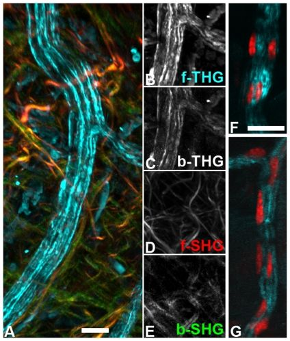 Nerve fibers in the cremaster.-A) Unfixed, explanted muscle, projection of several optical sections covering 50 µm depth. Peripheral nerve (forward THG, cyan) surrounded by collagen fibers (forward SHG in red, backward SHG in green). Some blood vessels and small structures also produce THG signals. B–E) Single channel images of A near the nerve junction. Forward THG and SHG images have a much better signal to noise ratio than backward images. While forward and backward SHG…