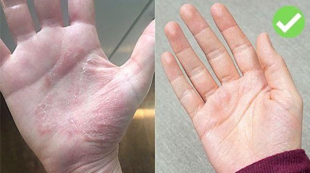 Le Remede Miracle Contre L Eczema Sur Les Mains Eczema
