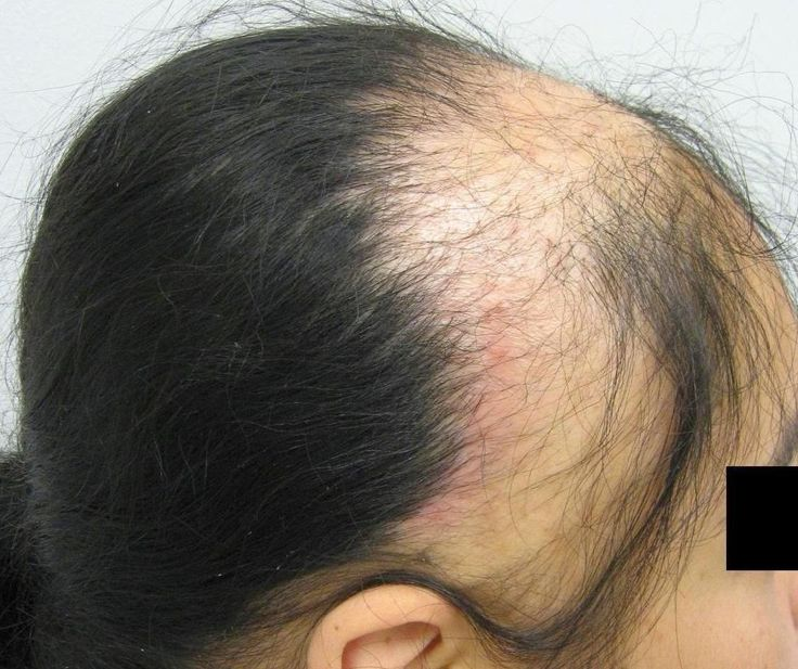 Natural Hair Treatment For Thinning Hair
