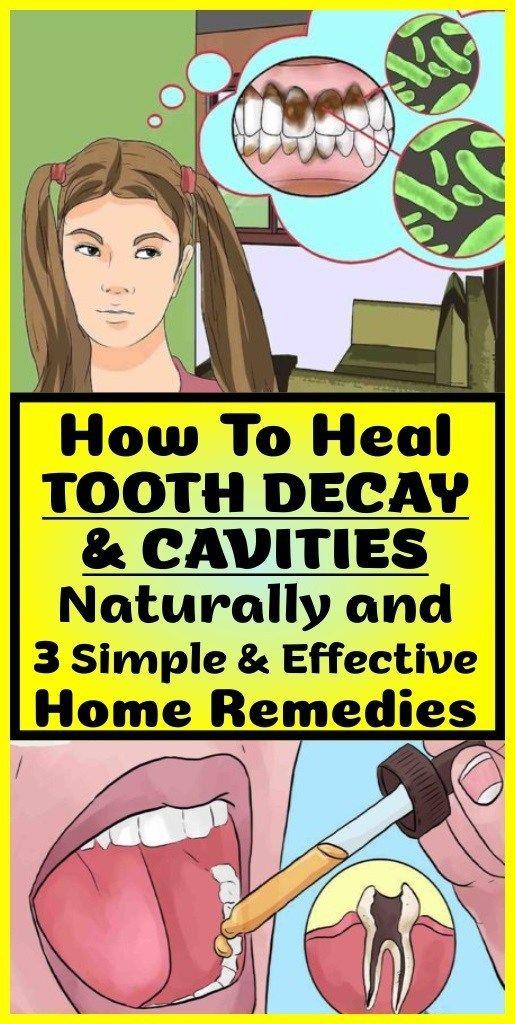 So heilen Sie Karies & Karies auf natürliche Weise & 3 einfache & effektive Hausmittel