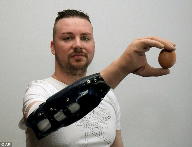 Transhumanism: The breakthrough that makes Mr Marinkovic's hand work was to obtain neural brain signals through nerve and muscle transplants that could be decoded by the bionic hand and translated into actions