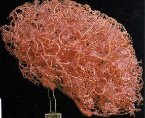 Vessels of the human brain....so bloody cool....
