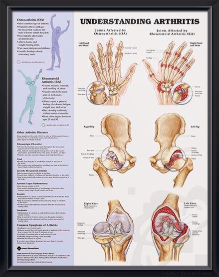 Can CBD oil relieve arthritis pain?