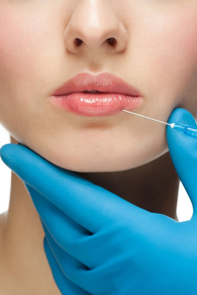 What to expect from Botox lip injections.