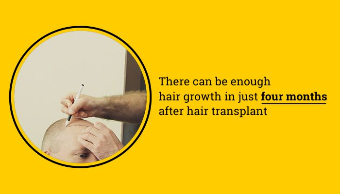 There can be enough hair growth in just four months after Hair Transplant #HairTransplant #HairGrowth #Hair #FUE #FUT #DrSoods