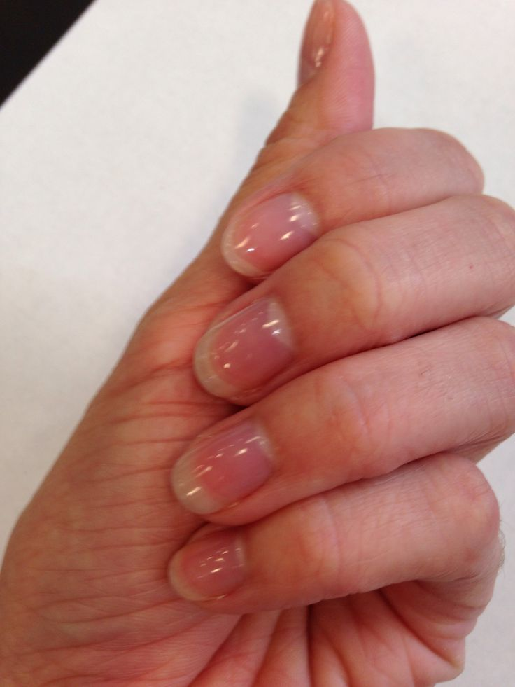 Shellac Acrylic Nails: Clear Shellac Manicure