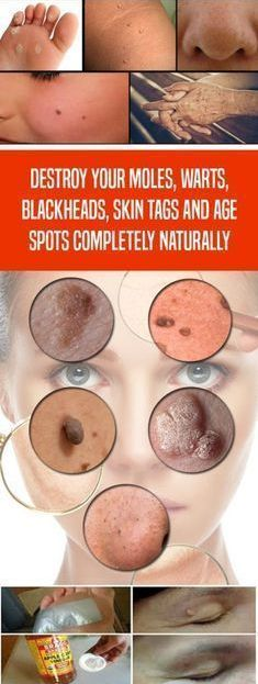 Destroy your Moles, Warts, Blackheads, Skin Tags and Age Spots Completely Naturally – Toned