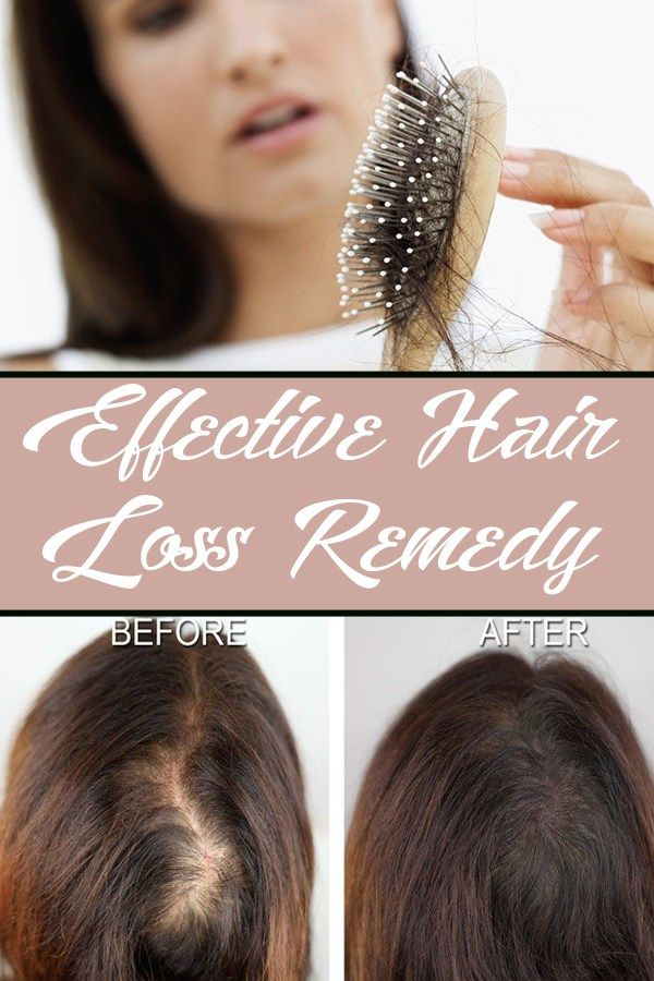 Effective Hair Loss Remedy