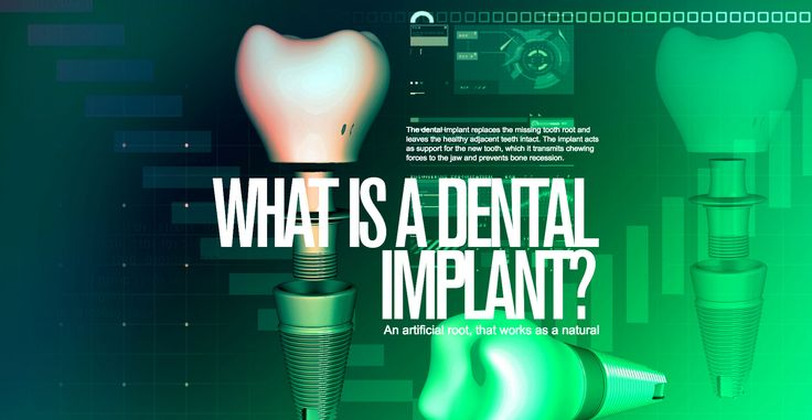 What is dental implants from Impladenta?