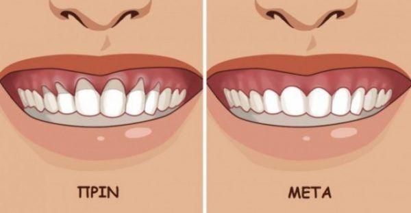 Τα άρρωστα ούλα μπορούν να προκαλέσουν ντροπή και δυσφορία. Τότε, απομακρύνονται από τα δόντια και δημιουργείται κενό που γεμίζει με βακτήρια. Αυτό προκαλε