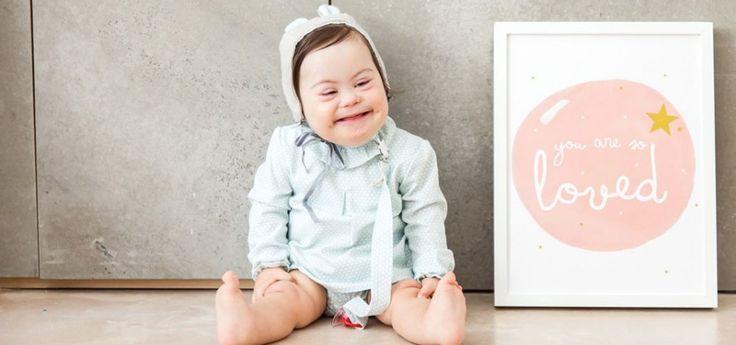 Clara, un bebé con síndrome de Down que es modelo
