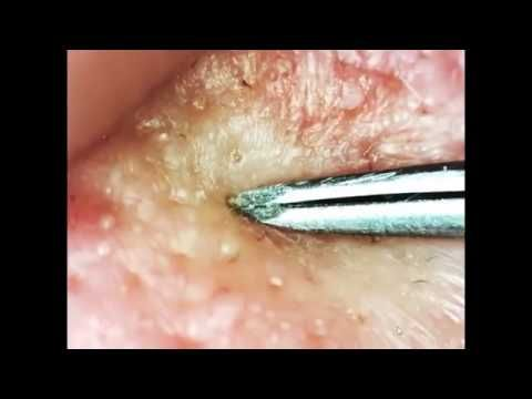 The Big blackhead Removal   How To Remove Blackheads by Using the Blackhead Removal Tool #2 2 -  CLICK HERE for the Acne No More program #acne #acnetreatment #acnetips #acnecare Welcome To Team Cyst – Pleas Subscribe pimple popping, surgery, extractor, shoulder cyst, zit on back, sebaceous cyst removal . Acne treatment, home remedies, medication side effects, and learn what causes... - #Acne