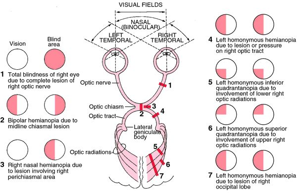 "Module 4. ""Types of anopsias (visual field defects) and corresponding anatomical insults."" Note that anything behind the chiasm gives a homonymous defect (anything along the optic tract, LGN, optic radiations, or visual cortex)."