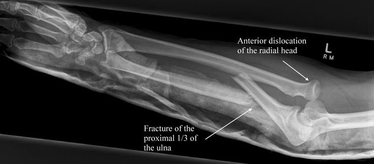 Monteggia fracture - subluxation of radial head, proximal ...
