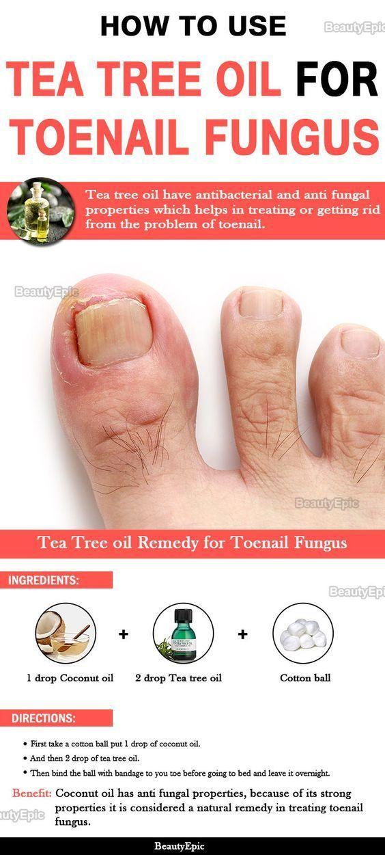 Tea Tree Oil to Treat Toenail Fungus: How to Use? | Health, Beauty ...