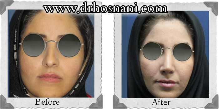 Open rhinoplasty was performed to straighten the crooked appearance of this lady's nose and improve its asymmetries.  #rhinoplasty #nosejob #Iran #nose_job_for_crooked_nose #nose_job_narrow_nasal_width #nose_job_for_dorsal_hump For more before and after photos of nose job, visit the website.