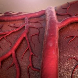 Actemra approved for giant cell arteritis