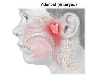 Nasal Sounding Speech (Hyponasal and Hypernasal)