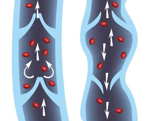 Żylaki nóg — naturalne leczenie