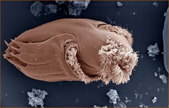 Top 10 Extraordinary Medical Treatments | Most Beautiful  |Beautiful Parasites