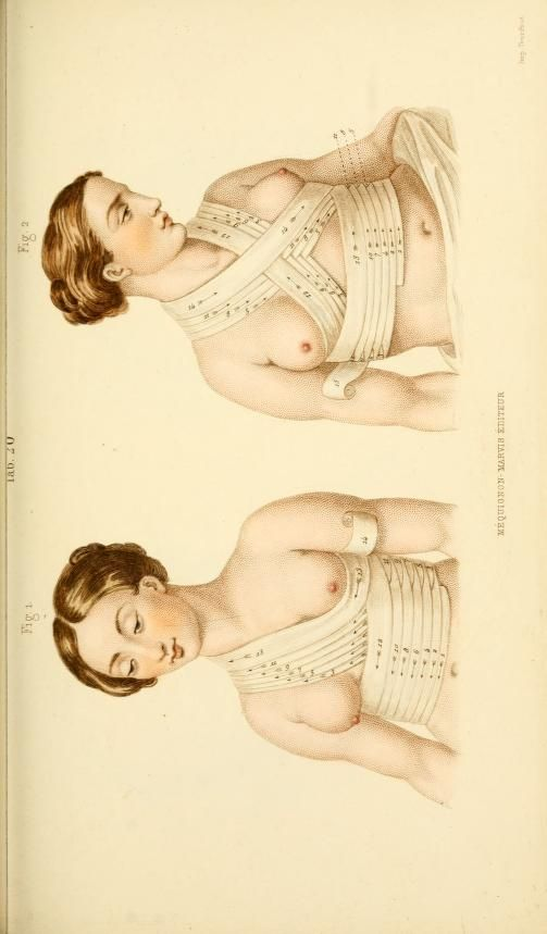 [Manual of surgical bandages, devices and dress... Neck and shoulders