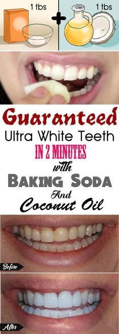 Yellow teeth are very embarrassing, and can wither away your smile and laugh. Lucky for you, we are sharing amazing home remedies that you can use to ultimately get white teeth faster than any teet…