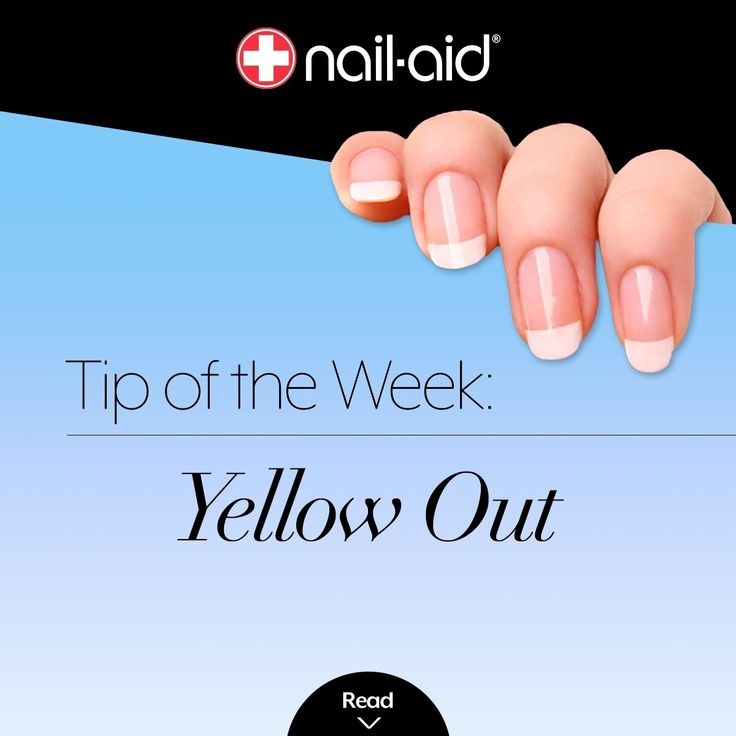 Nails are yellow when you take off your polish? Rub nails with a paste made out of baking soda and water. This also smoothes out ridges, dents and removes dead cuticles. You could also soak stained nails in water with denture cleansing tablets. But for a faster treatment, try Nail-Aid 2 Step Set Stain Remover & Brightener. And, before applying glitter or dark polish, use two coats of basecoat. #nailpolish #nailaid #nailcare #manicure #nailart #nailstagram #nail #nails #tip #tips…