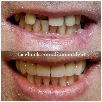Before After- Have a bright smile