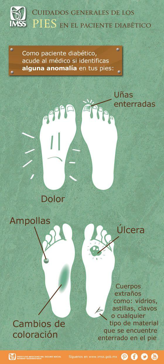 Cuidados generales de los pies en el paciente diabético