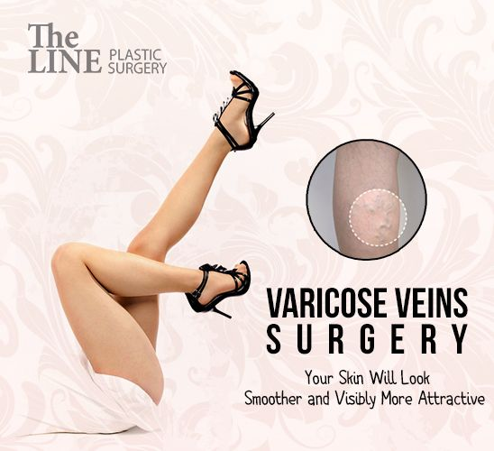Varicose veins refer to veins on the legs that have become stretched and enlarged, and are visible on the skin It is a kind of blood vessel malformation symptom that the dark red or bluish vessels are twisted and enlarged. The reason for this is because the leaflet valves in the veins do not let the blood flow property from the legs to the heart. e Once varicose veins occur Varicose veins surgery is must.