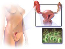 Blausen 0719 PelvicInflammatoryDisease - Pelvic inflammatory disease - Wikipedia, the free encyclopedia